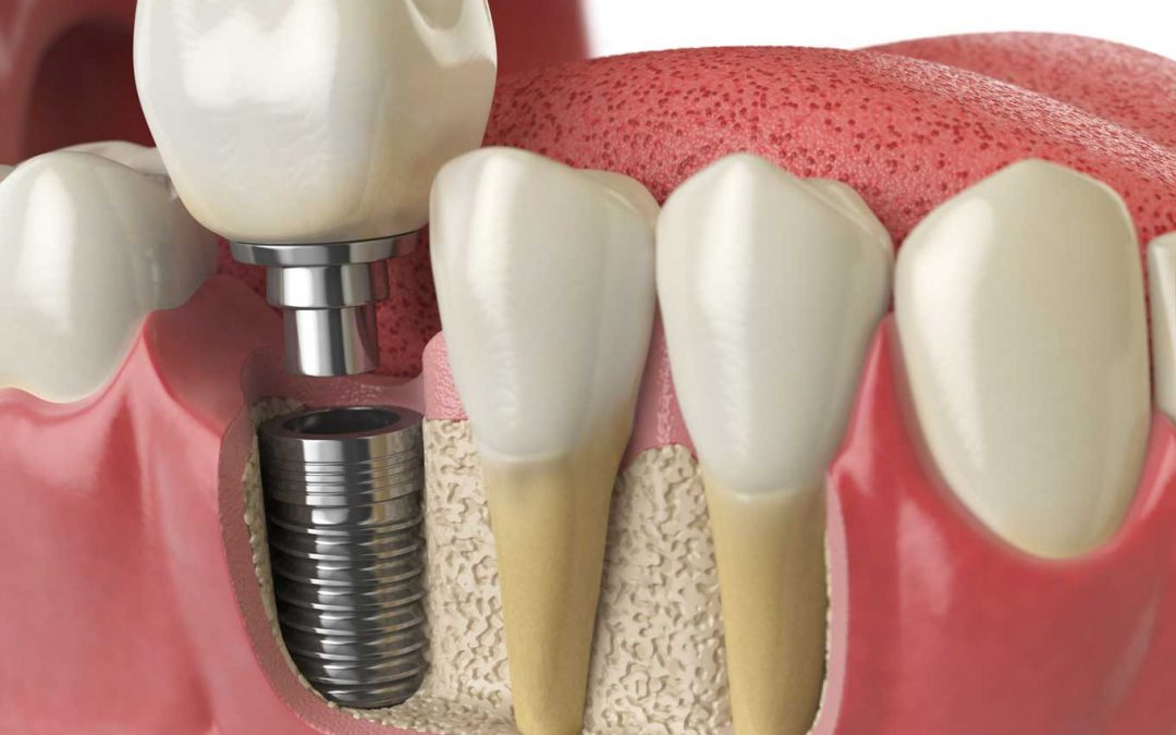 Impianti dentali: trattarli come se fossero i propri denti e guai a fumare.