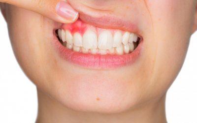 Parodontite e malattie sistemiche.