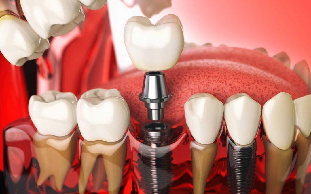 """Se il dente non c'è più arriva in aiuto """"l'impianto"""""""